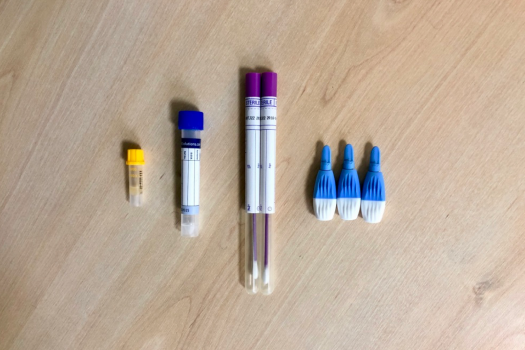 Sample tubes used in home testing kit for sexually transmitted infections (STIs)
